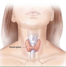 chronic hyperthyroidism
